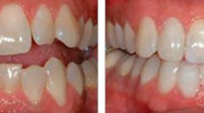 Veneers The Answer For Many.